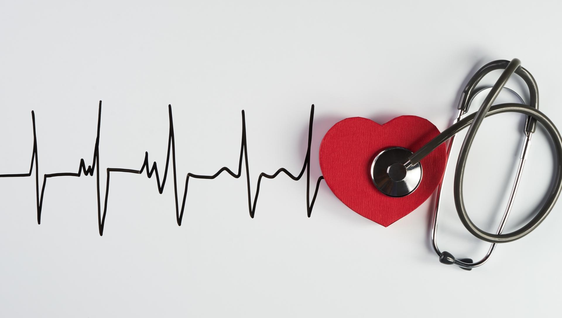 single infarto